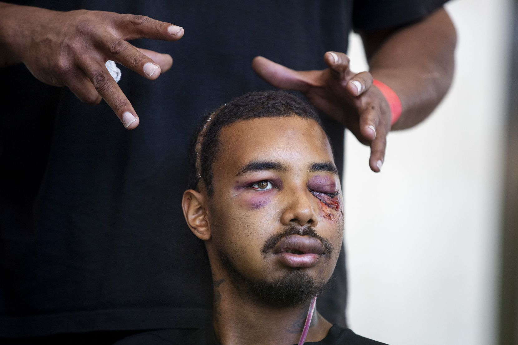 Andre Ray shows the injuries his son Brandon Saenz suffered when he was hit with less-lethal ammunition fired by Dallas police during a peaceful protest May 30. Saenz lost his left eye and seven teeth and sustained a facial fracture.