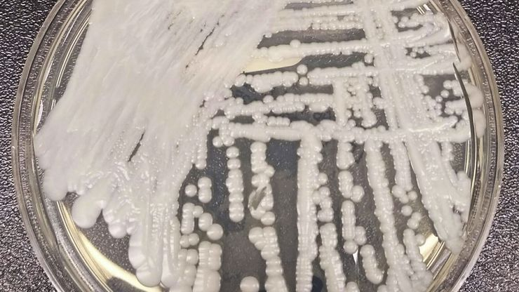This 2016 photo shows a strain of Candida auris cultured in a petri dish at a CDC laboratory.
