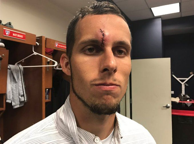 Matt Hedges after receiving post game stitches for a gash on his forehead vs NYCFC. (May 14, 2017)