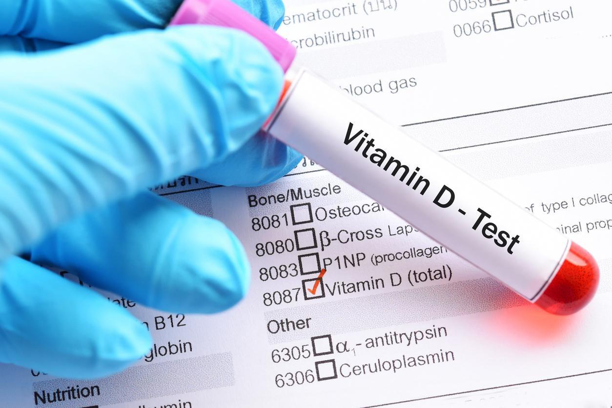 Una prueba de laboratorio médico para determinar niveles de vitamina D en un paciente.(GETTY IMAGES)