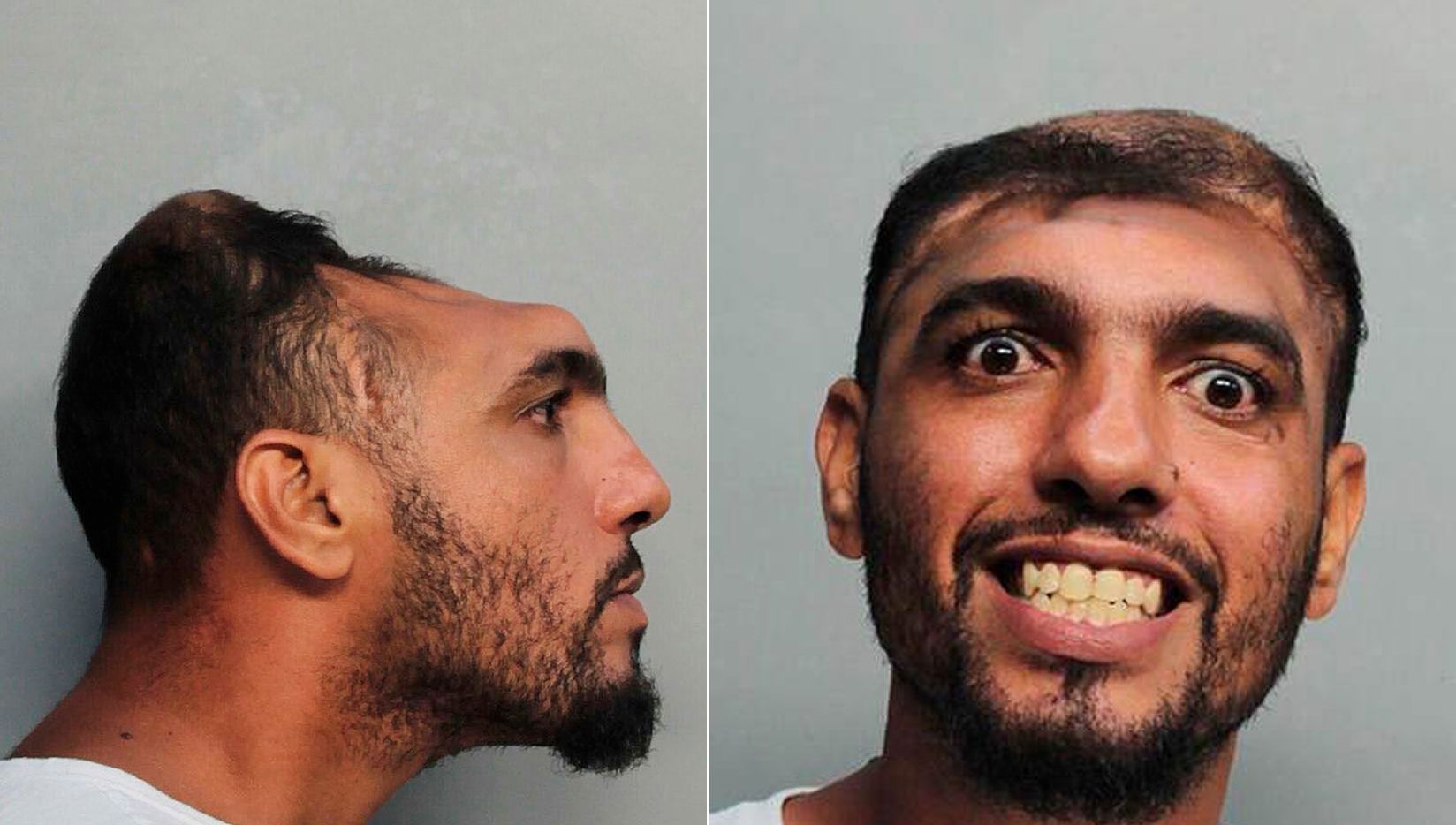 This Monday, Oct. 17, 2016, photo provided by the Miami-Dade Corrections and Rehabilitation Department shows Carlos Rodriguez, who is facing arson and attempted first-degree murder charges. (Miami-Dade Corrections and Rehabilitation Department via AP)