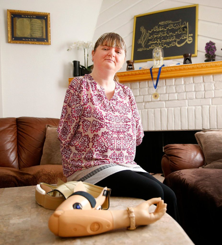 Belma Islamovic, a Bosnian refugee from over 20 years ago, uses prosthetic arms after war-time injuries  She and her family found safe passage to the U.S. in 1994. (Tom Fox/The Dallas Morning News