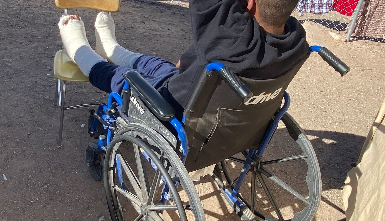Pedro Gomez, from Guatemala, seen here on Feb. 9,, heals from two broken ankles he suffered after falling off border wall. His smuggler, he said, abandoned him after learning he wouldn't be able to walk for months.