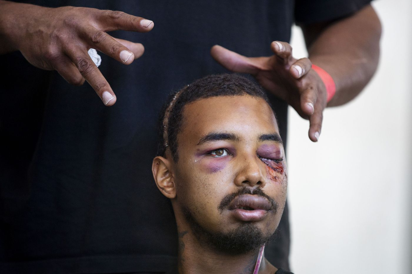 The hands of Andre Ray gesture at the severe injuries sustained in the left eye and head by his son, Brandon Saenz, 26, from less lethal ammunition fired by Dallas Police at this past weekendÕs protests during a press conference in downtown Dallas on Wednesday, June 3, 2020. Saenz lost his left eye and has had to have metal plates put in his head. Law enforcement used various crowd control weapons throughout last weekend as hundreds of demonstrators took to the streets to denounce police brutality in response to the recent deaths of George Floyd in Minneapolis and Breonna Taylor in Louisville.