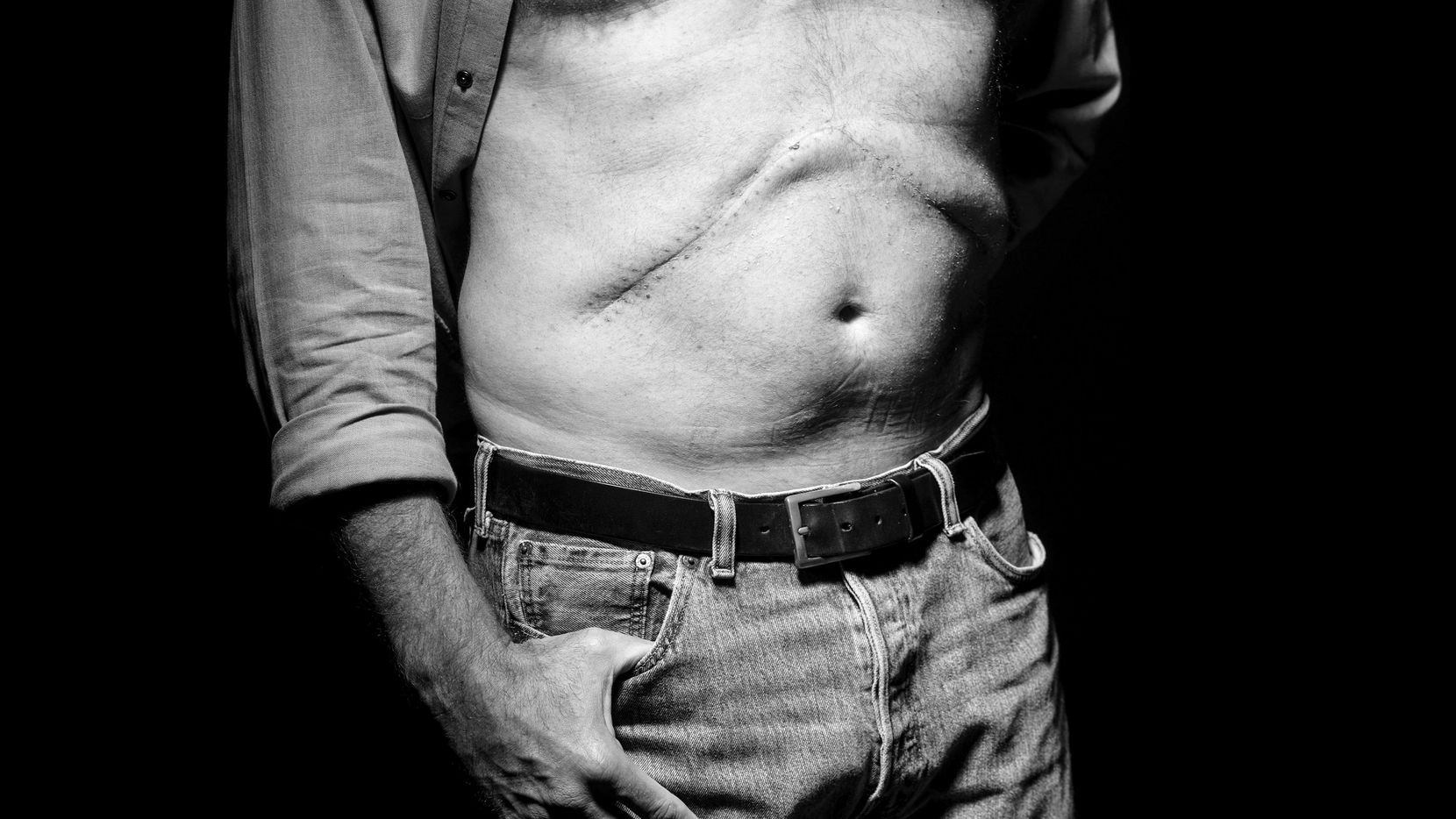 Robert Wilonsky, city columnist at The Dallas Morning News, posed for a photograph showing his surgical scars at the DMN on July 31.