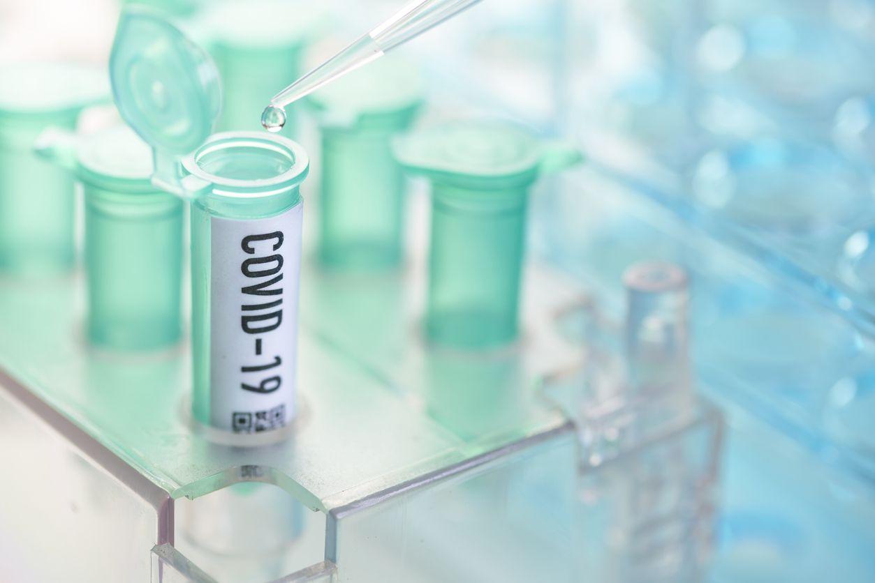 Una prueba de coronavirus en un laboratorio.
