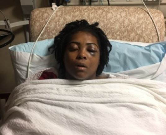 Davis was hospitalized in critical condition but was back on her feet after four days and released the next week. She still has a long road to recovery.