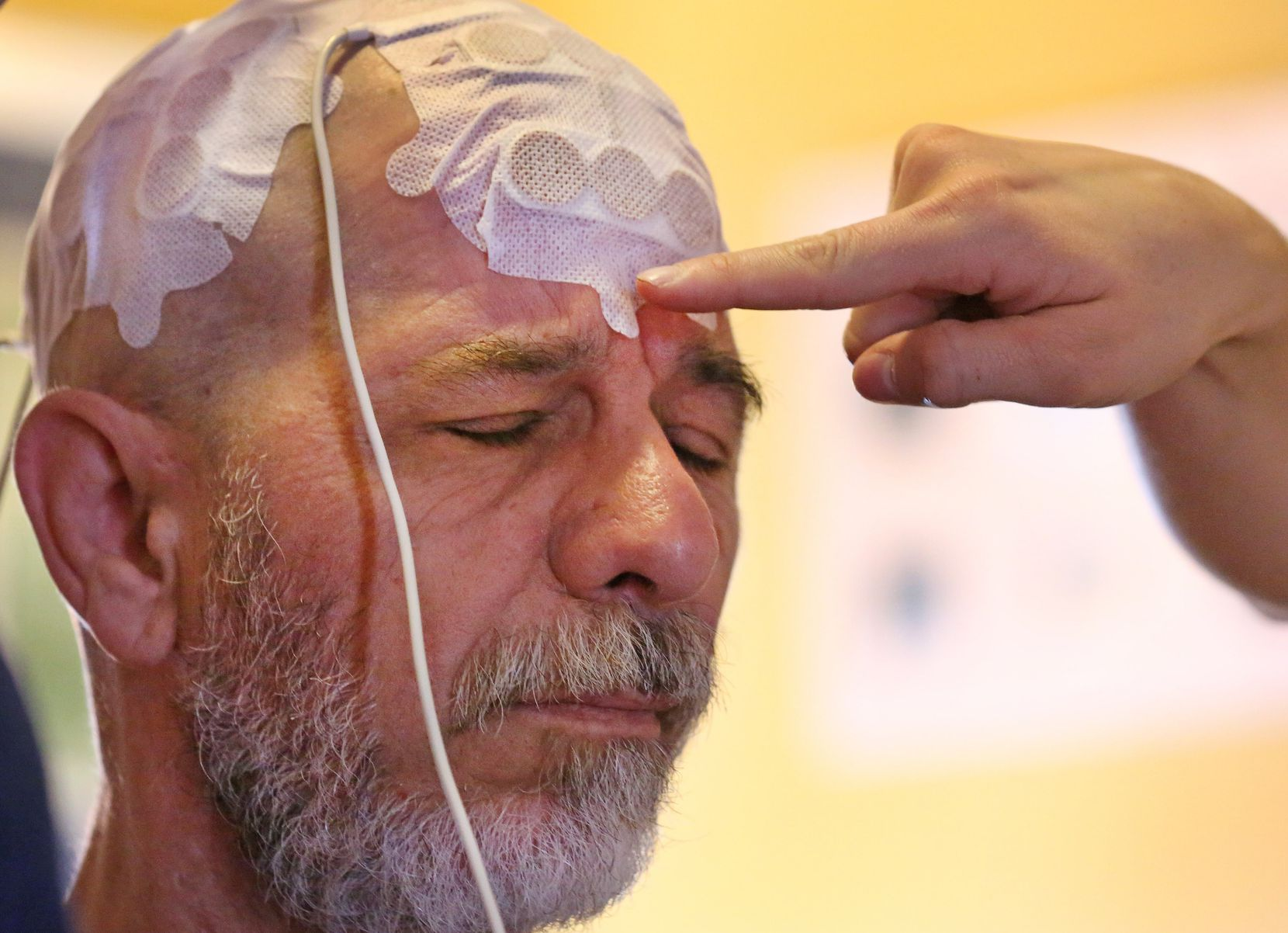 Jeffrey Weiss is fitted with an Optune device as part of his treatment for glioblastoma at his home in North Dallas on April 12.