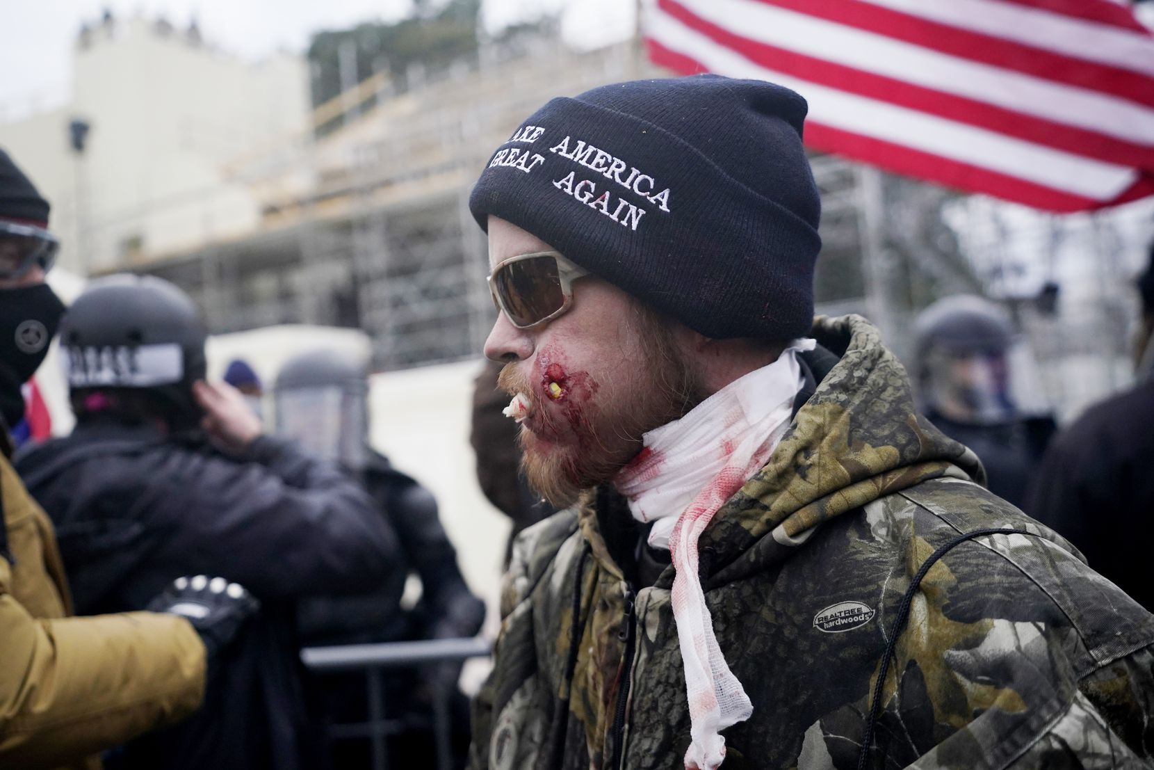 A protester is shown injured during a confrontation with police during a rally Wednesday, Jan. 6, 2021, at the Capitol in Washington. As Congress prepares to affirm President-elect Joe Biden's victory, thousands of people have gathered to show their support for President Donald Trump and his claims of election fraud.