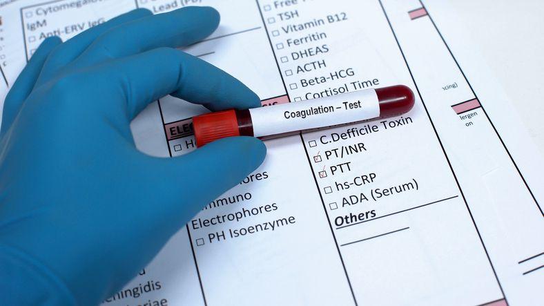 Una muestra de sangre para determinar el nivel de coagulación en la sangre de un paciente