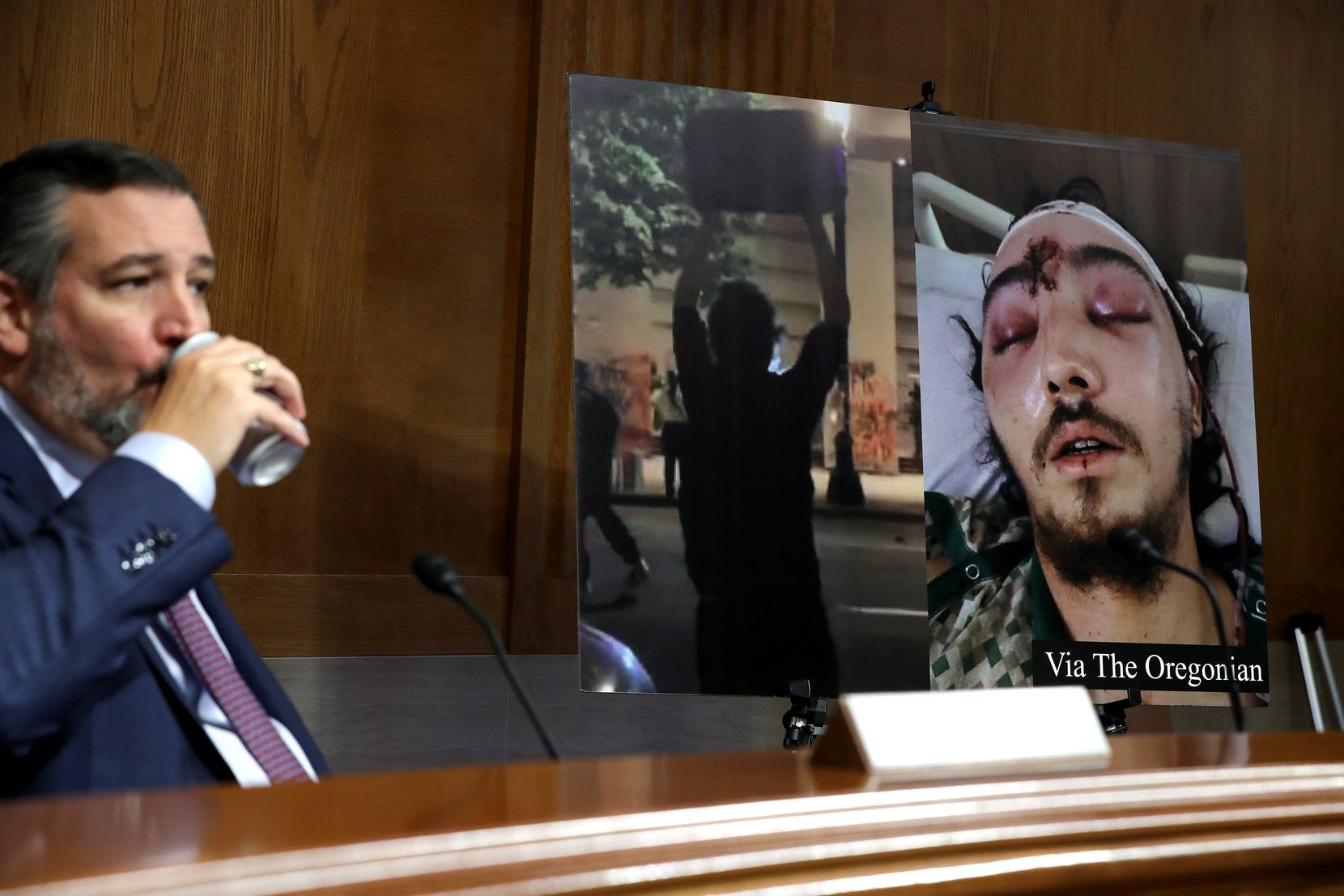 """Images of Donavan La Bella, who was shot in the head with a rubber bullet while protesting outside the federal court building in Portland, are displayed during a Senate Judiciary subcommittee hearing about """"anarchist violence"""" on Aug. 4, 2020, chaired by Sen. Ted Cruz, left."""