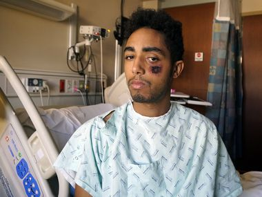 Vincent Doyle said he was struck by a so-called less lethal bullet during a May 30 protest in downtown Dallas. The 21-year-old Frisco resident recovered at an area hospital. (Lawrence Jenkins/Special Contributor)
