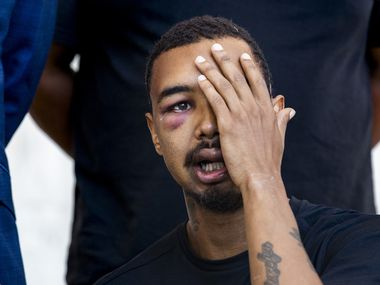 "Surrounded by his lawyers and his father, Brandon Saenz, 26, explains how he was hit in the left eye by a ""less lethal"" bullet fired by Dallas Police at this past weekend's protests during a press conference in downtown Dallas on Wednesday, June 3, 2020. Saenz lost his left eye and has had to have metal plates put in his head. Law enforcement used various crowd control weapons throughout last weekend as hundreds of demonstrators took to the streets to denounce police brutality in response to the recent deaths of George Floyd in Minneapolis and Breonna Taylor in Louisville."