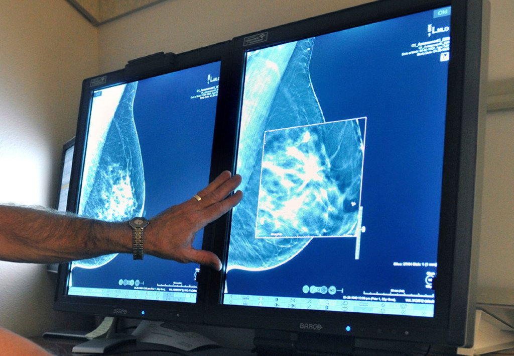 FILE - In this Tuesday, July 31, 2012 file photo, a radiologist compares an image from earlier, 2-D technology mammogram to the new 3-D Digital Breast Tomosynthesis mammography in Wichita Falls, Texas.  (Torin Halsey/Times Record News via AP)