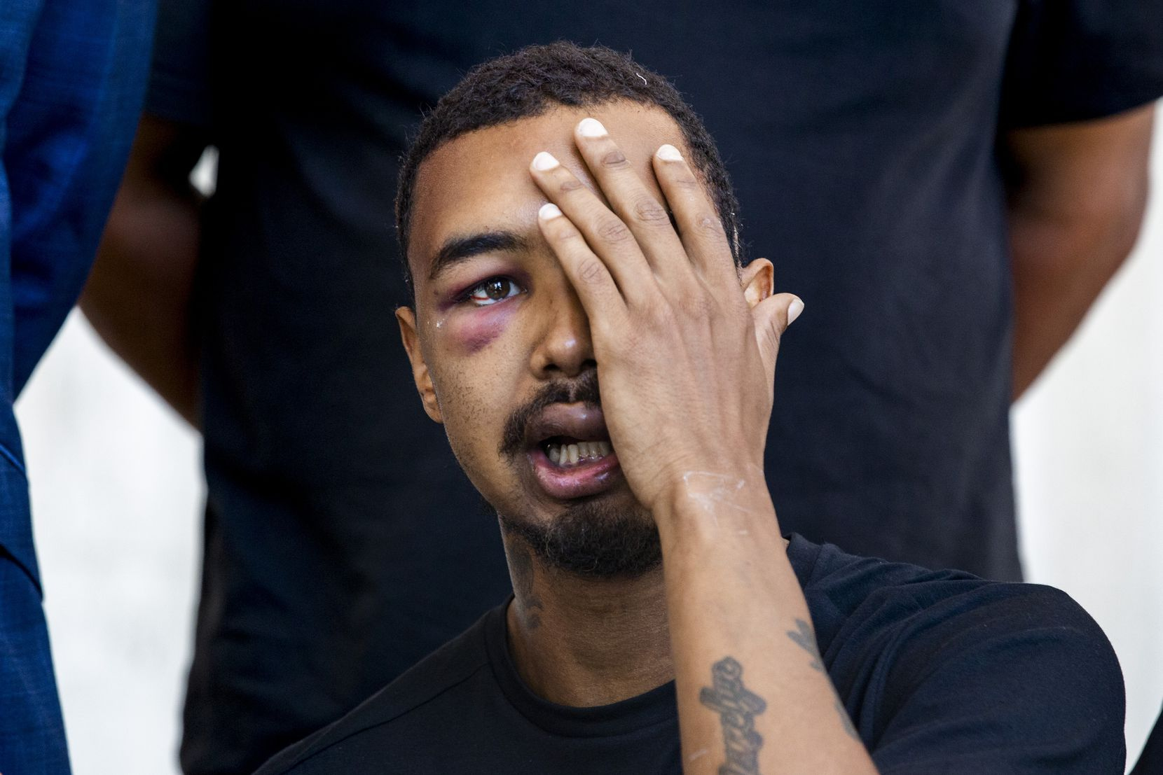 Surrounded by his legal representation and his father, Brandon Saenz, 26, explains how he was hit in the left eye by a rubber bullet fired by Dallas Police at this past weekendÕs protests during a press conference in downtown Dallas on Wednesday, June 3, 2020. Saenz lost his left eye and has had to have metal plates put in his head. Law enforcement used various crowd control weapons throughout last weekend as hundreds of demonstrators took to the streets to denounce police brutality in response to the recent deaths of George Floyd in Minneapolis and Breonna Taylor in Louisville. (Lynda M. Gonzalez/The Dallas Morning News)