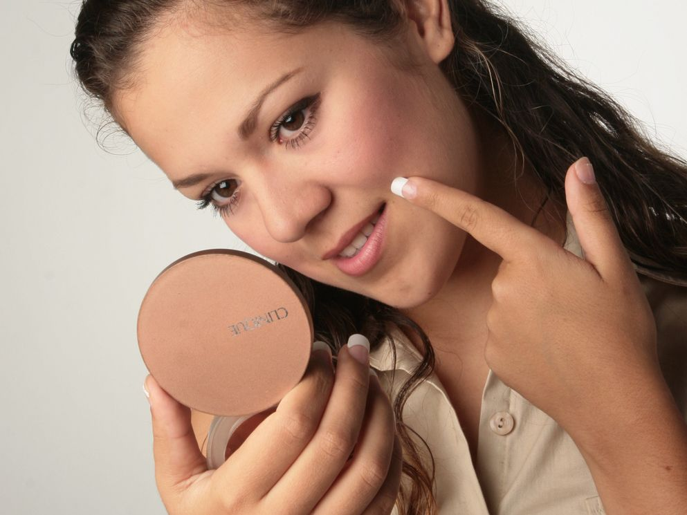 El acné es un padecimiento del complejo folículosebáceo, o sea, de la unidad compuesta por el pelo, su folículo y las glándulas sebáceas anexas.