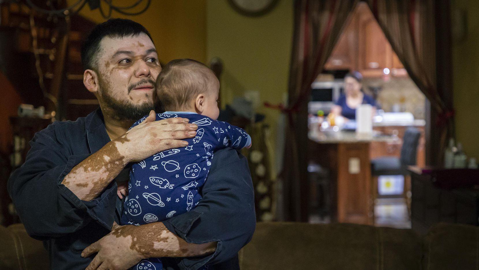 Domingo Méndez y su hijo Mateo en su casa en Oak Cliff. Hace siete años, Domingo y su otro hijo Pablo sufieron quemaduras luego de una explosión de gas, que en principio, Atmos no admitió su responsabilidad.  SMILEY POOL/DMN