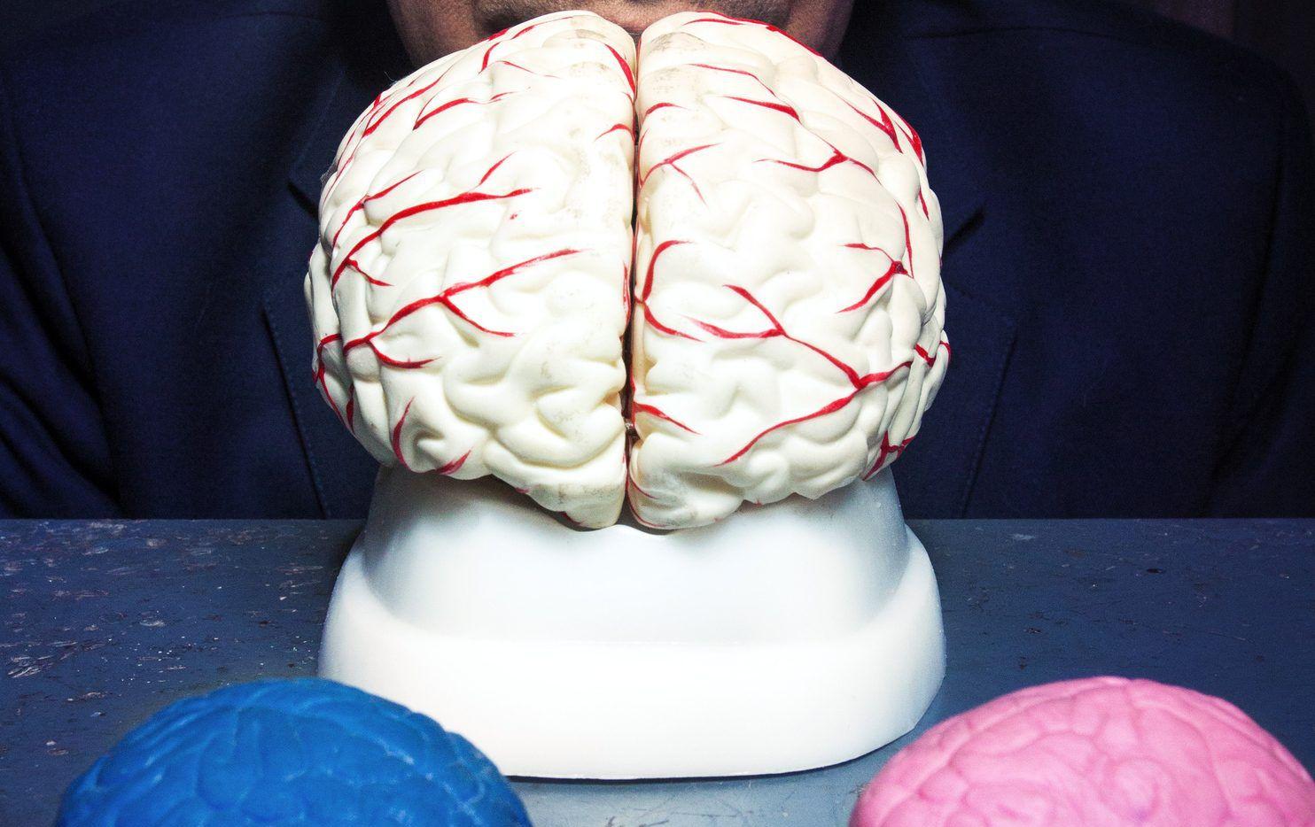 De acuerdo con Góngora Rivera, el derrame cerebral es causado por el descontrol de la presión arterial que hace que las arterias finas del cerebro se dañan poco a poco a lo largo de los años. AGENCIA REFORMA