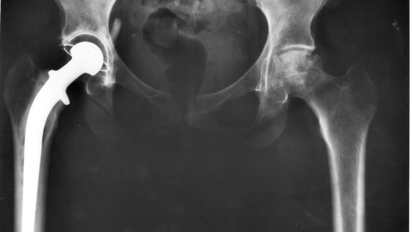 This National Institutes of Health X-ray of a pelvis shows a total hip joint replacement. More than 330,000 such surgeries are performed annually.