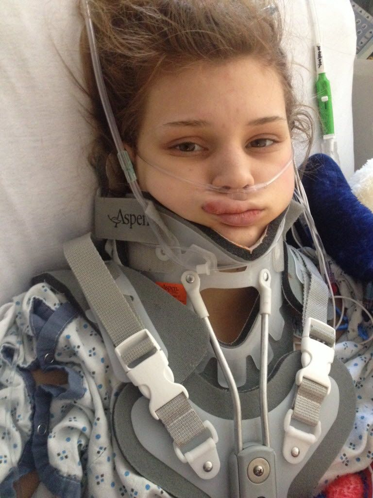 Makenzie a short time after the January 2014 accident. (Oklahoma University Medical Center)