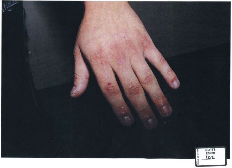 Plano police took photos of the injuries to Enrique Arochi's hands and arms in September 2014.