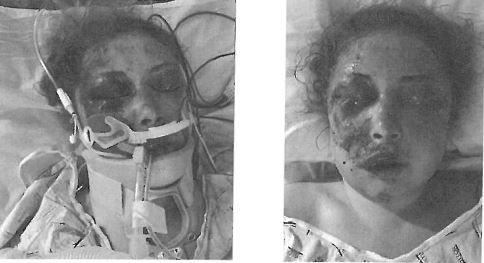 Jonna King was in a coma for two days in a hospital ICU following the attack.