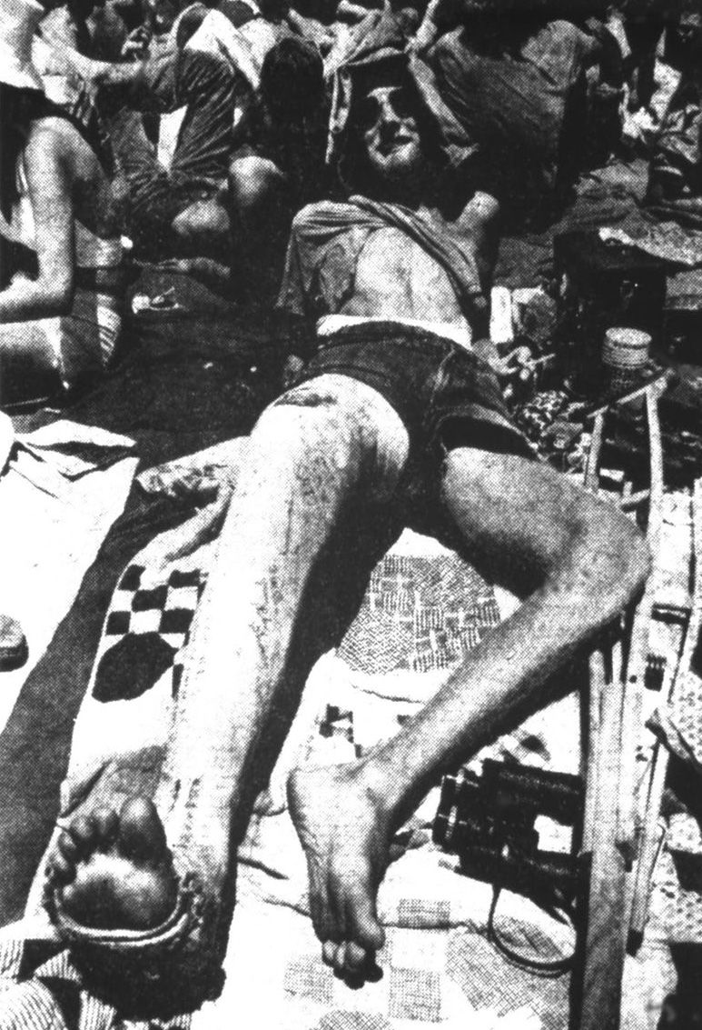 Bill Smith of Oklahoma didn't let a broken leg and the brutal heat deter him from attending the Rolling Stones' July 6, 1975, concert at the Cotton Bowl in Dallas.