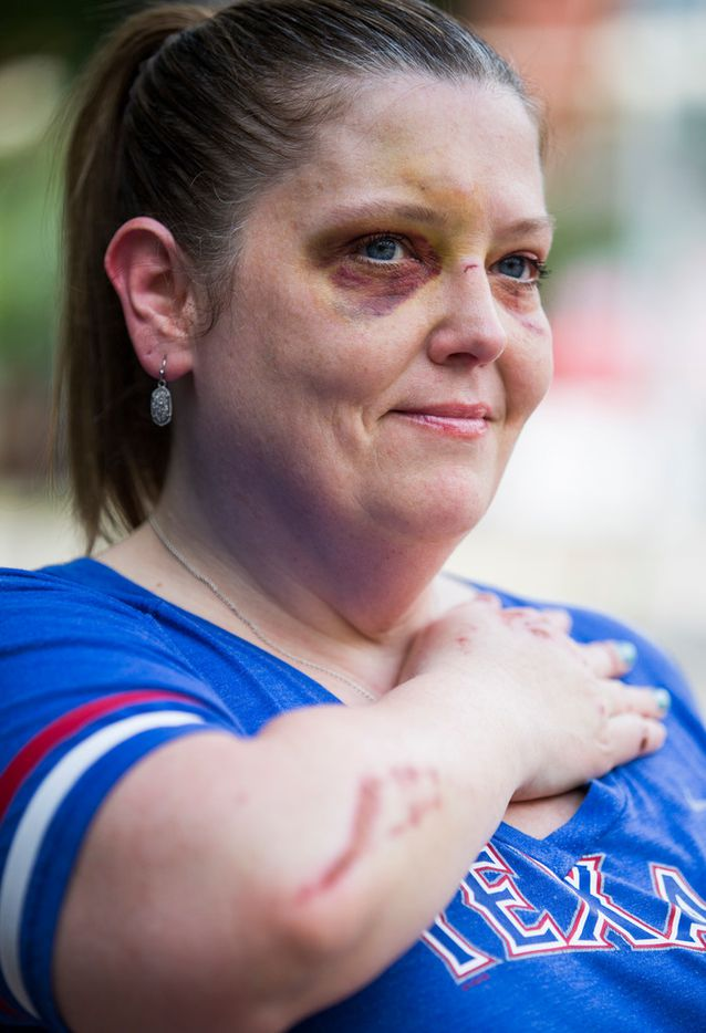 Kelley Mitchum shows her injuries on Thursday, July 12, 2018 outside Christie's Sports Bar on McKinney Avenue in Dallas. Mitchum was injured when she fell off of a Lime scooter while she crossed over some trolley tracks a few feet from where she stood for the photo. She was not wearing a helmet.