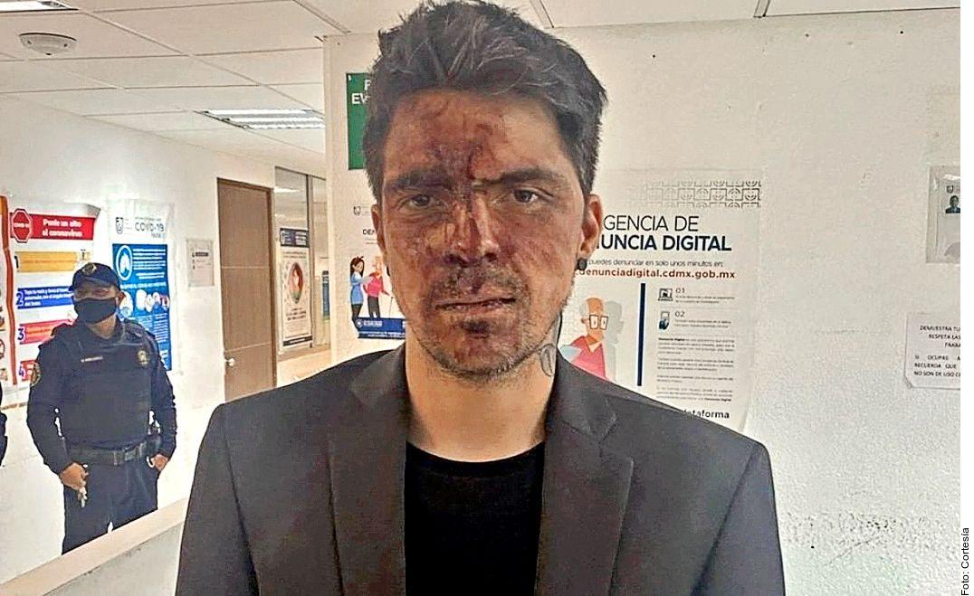 César D'Alessio acusó a Arturo Montiel Yáñez de haberlo agredido físicamente a él y a su novia, a quien dijo que atacó sexualmente.